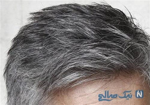 موهای سفید شده