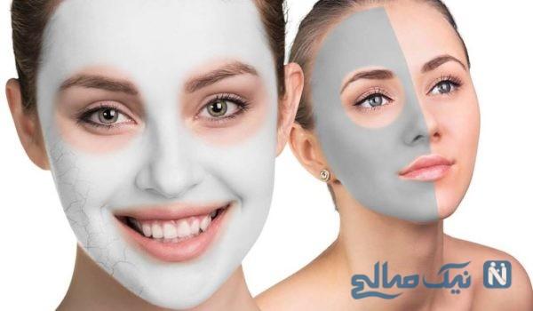 ماسک خانگی برای درمان جوش