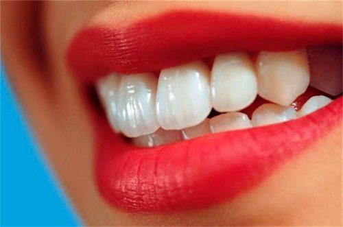 داشتن دندان هایی زیبا