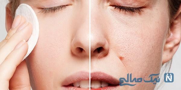 راهکارهای موثر برای زیبایی و سلامت پوست!