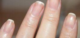 علت شکل هلال در انتهای ناخنها چیست؟!