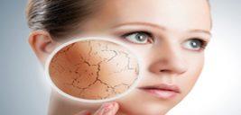مراقبت های ویژه برای خشکی پوست!