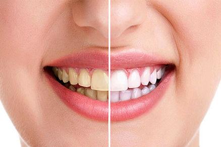 چگونه دندان هایی سفید داشته باشید