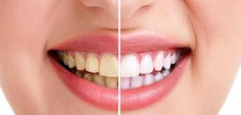 چگونه دندان هایی سفید داشته باشید!