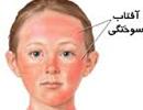 پیشگیری از آفتاب سوختگی و درمان های طبیعی آن!
