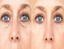 راههای مختلف برای از بین بردن چروک های اطراف چشم!