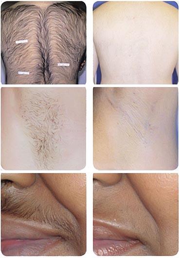 لیزر موی زائد + تصاویر