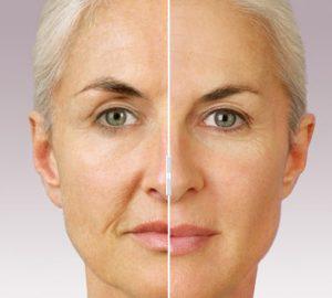 جوانسازی پوست و راه حل هایی برای داشتن پوستی سالم!