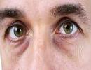 روش های درمانی برای رفع تورم چشم ها!