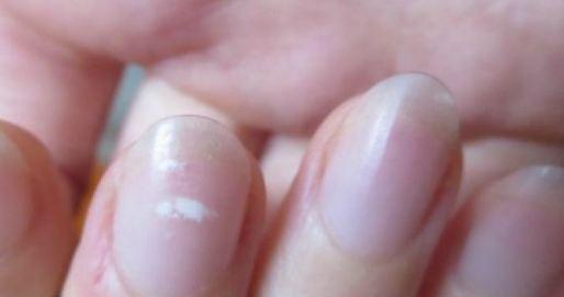 لکه سفید روی ناخن در اثر چه مواردی بوجود می آید؟!