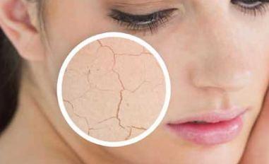 پوست خشک و درمان آن با استفاده ماسک های خانگی!