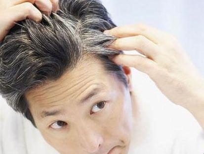 سفید شدن مو را با این راهکارهای مفید کاهش دهید!