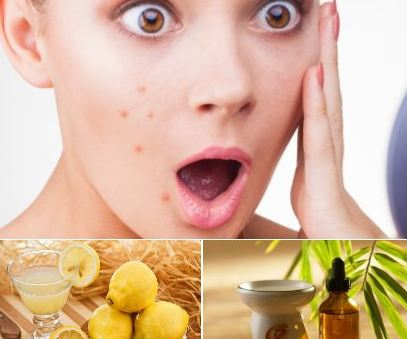درمان جوش و آکنه با روش های گوناگون در منزل!