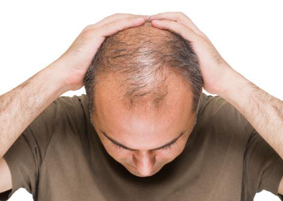 ریزش غیر طبیعی مو چه دلایلی می تواند داشته باشد؟!