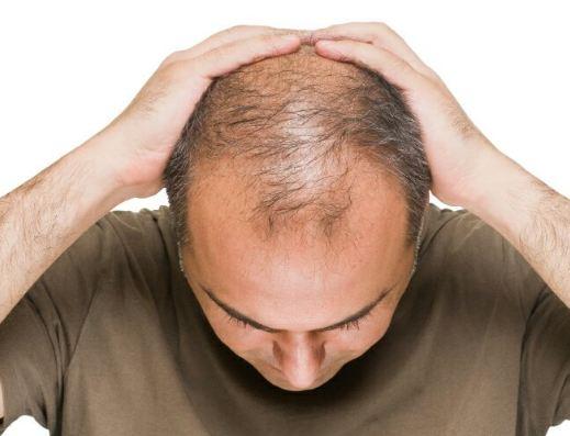دلایل اصلی ریزش مو که باعث کچلی می شود ، چه مواردی می باشد؟!