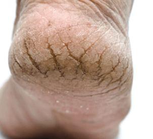 ترک کف پا در اثر چه مواردی ایجاد می شود؟ و راه حل برطرف کردن آن!