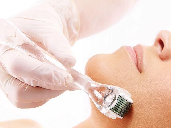 ترمیم آسیب های ساختاری پوست با روش میکرونیدلینگ!