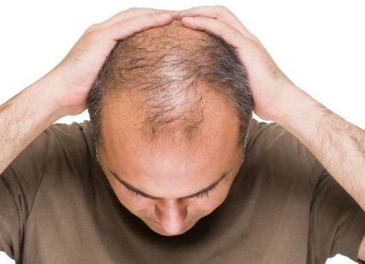 چند روش کاربردی برای جلوگیری از ریزش مو!