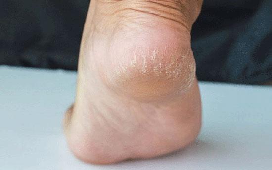 اولین اقدام برای درمان ترک پا در خانه چیست؟!