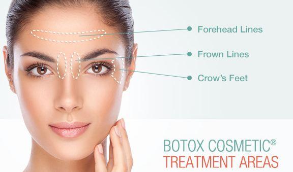 بوتاکس یکی از محبوبترین روشهای زیبایی