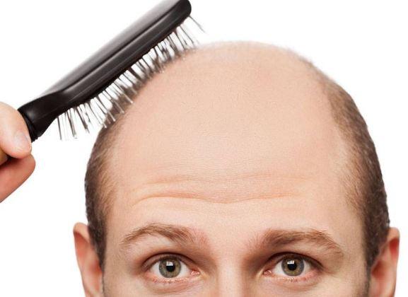 جلوگیری از ریزش موها با استفاده از گل ختمی!