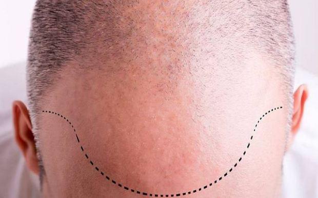 جراحی کاشت مو و تمام نکته هایی که درباره آن باید دانست!