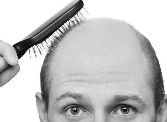 ریزش مو در مردان در اثر چه ژن هایی می باشد؟!