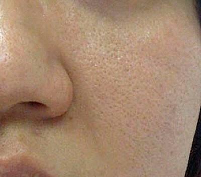 بستن منافذ پوست با ترفندهایی آسان!