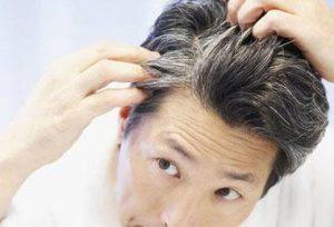 پیشگیری از سفید شدن موها با ویتامین های مفید!