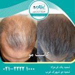 بهترین کلینیک تخصصی کاشت مو  در ایران کدام است ؟