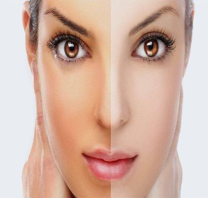 انواع ماسک های خانگی که باعث افزایش زیبایی پوست میشوند!