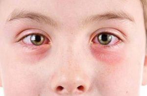 پف کردن چشم ها در صبح چه علت هایی دارد؟!