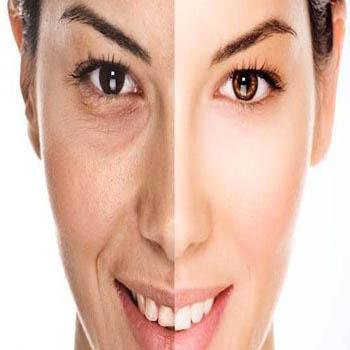 پیر شدن پوست