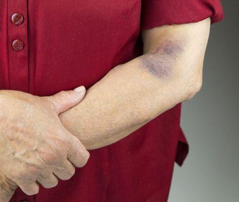 کبود شدن پوست بدون ضربه