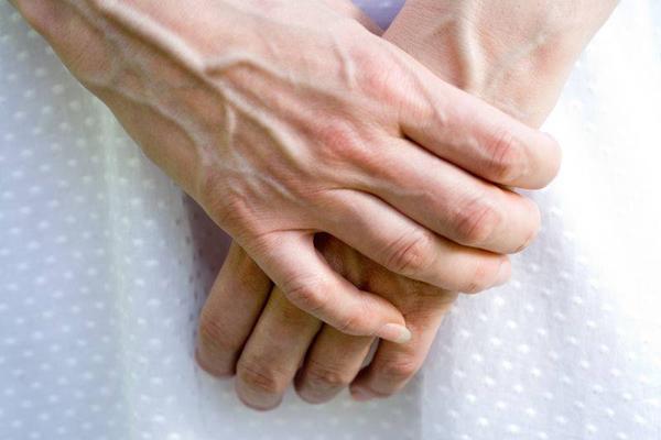 عوامل پیر شدن دست های خود را بشناسید!