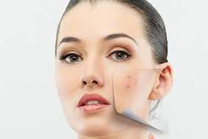 ترفندهای کاهش لکه های پوستی را یاد بگیرید!