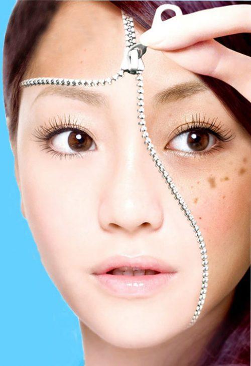 کاهش لکه های پوستی