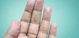 روشهای حل مشکل خشکی پوست در نقاط مختلف بدن!