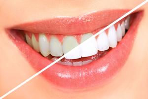 روش های موثر برای سفید شدن دندان!