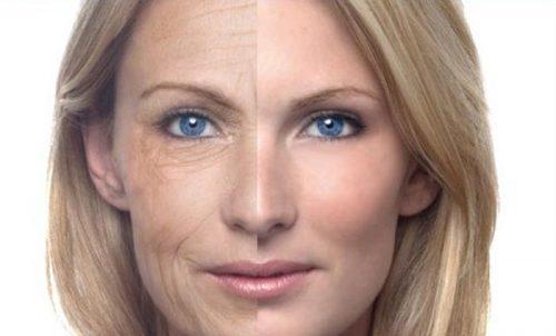 درمان چین و چروک های صورت