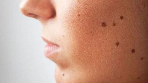 از بین بردن خال های پوست