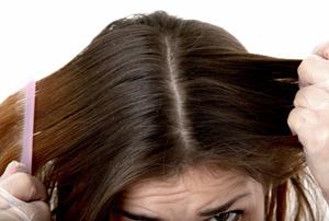 دلایل شوره سر چیست و چگونه شوره سر درمان میشود؟!