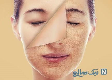 رابطه کبد و زیبایی پوست