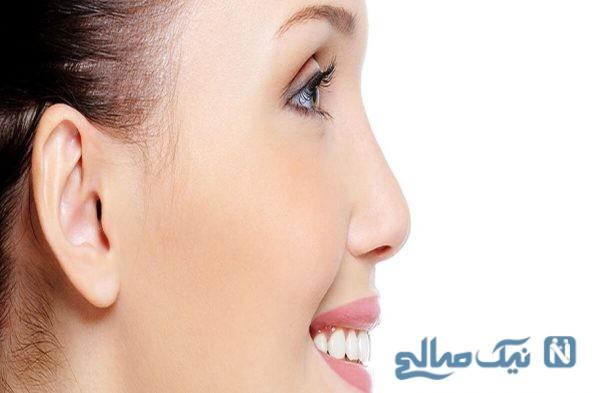 کوچک کردن و زیبایی بینی رایگان و بدون جراحی