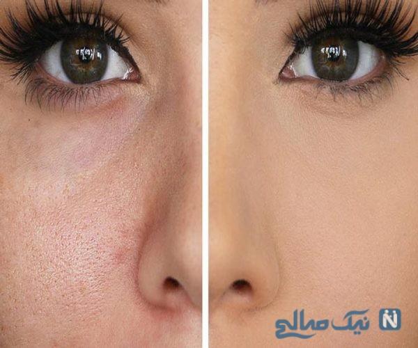 درمان منافذ باز پوست صورت