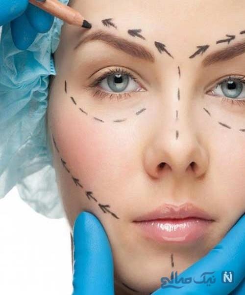 بازار داغ جراحی زیبایی