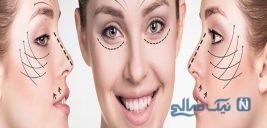 بازار داغ جراحی زیبایی مختلف برای عید
