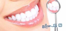 درمان ارتودنسی در زیبایی دندان ها چه میزان موثر است