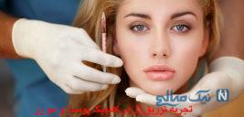 تجربه تزریق ژل در کلینیک پوست و مو رز