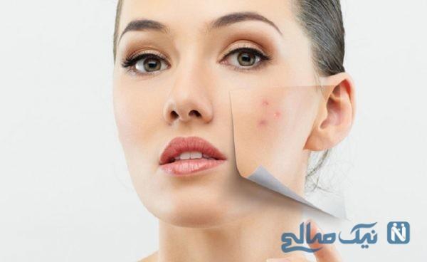 سیستم گوارش سالم یکی از عوامل زیبایی پوست